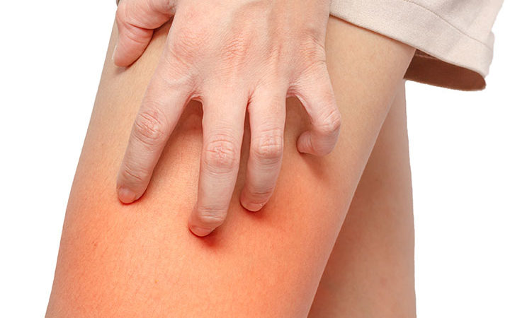 Best Home Remedies To Treat And Prevent A Chafing Rash