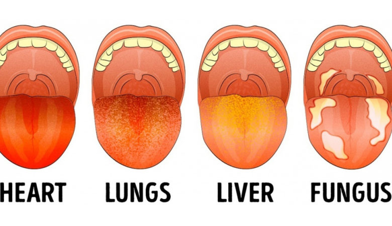 13 Things Your Tongue Say About Your Health