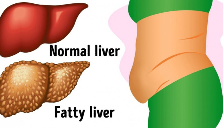 6 Warning Symptoms That Show Your Liver Is Full of Toxins