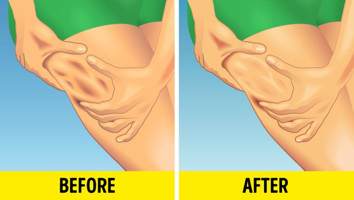5 Tips from Dermatologists How to Reduce Cellulite That Actually Work