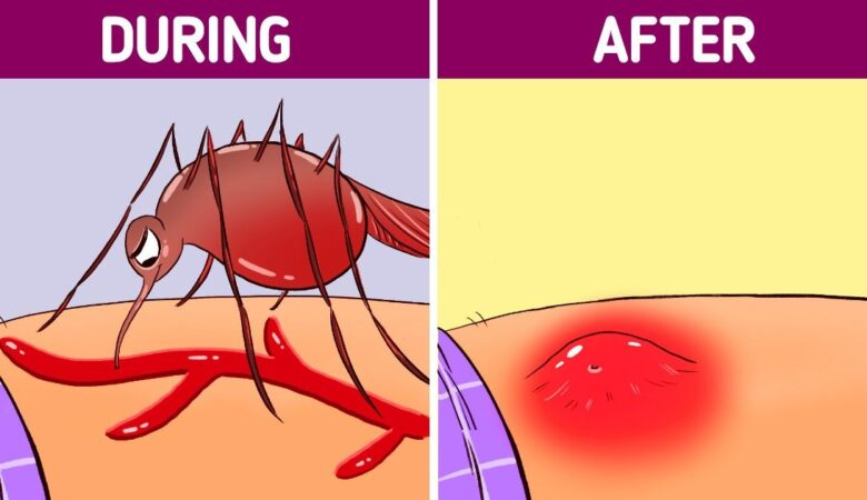 This Is What Happens to Your Body When a Mosquito Bites You