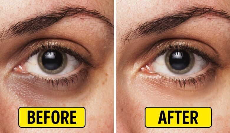 8 Сheap Yet Proven Ways to Eliminate Dark Circles