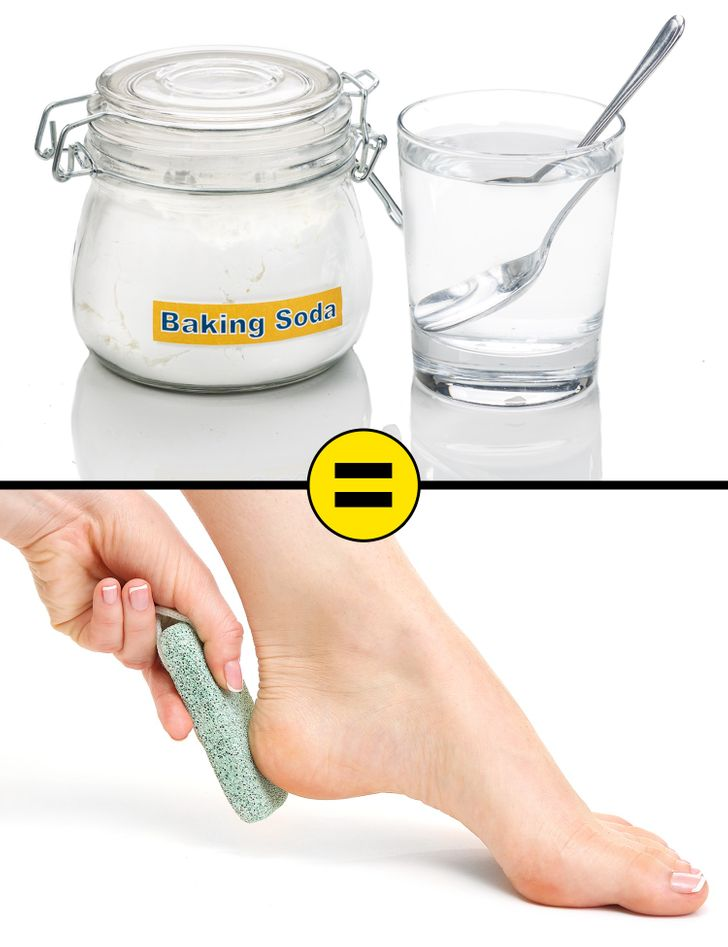 10 Effective Home Remedies to Remove Cracked Heels and Get Beautiful Feet