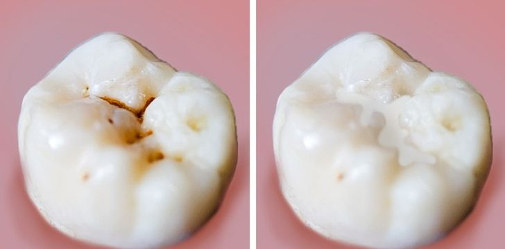 6 Major Mistakes We Make When Taking Care of Our Teeth