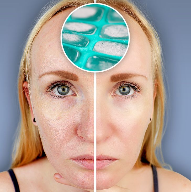 What Can Happen to Your Skin When You Rub Ice on the Face Every Day