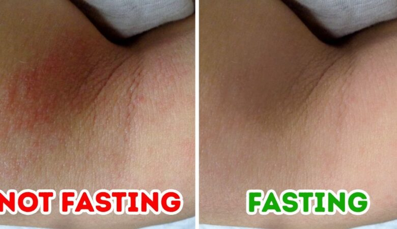 What Could Happen to Your Skin if You Fast