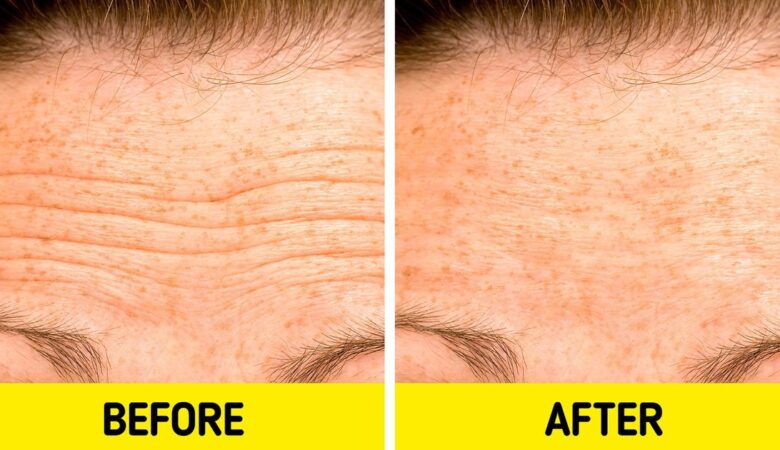 5 Natural Remedies to Make Forehead Lines Less Visible