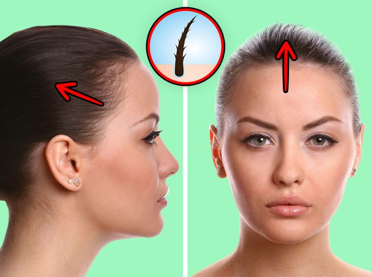 What Can Happen to Your Hair If You Wear Ponytails Way Too Often