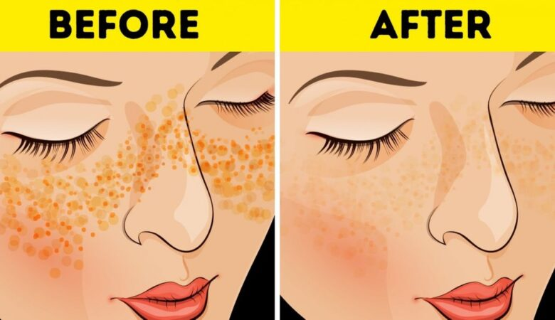 Best Way To Get Rid Of Acne Scars And Pimple Marks Naturally
