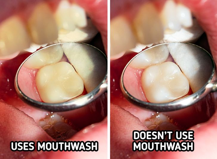 6 Daily Habits That Are Staining Your Teeth