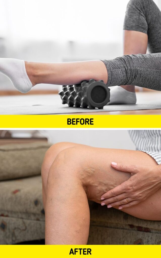 5 Pieces of Home Fitness Equipment That May Do More Harm Than Good