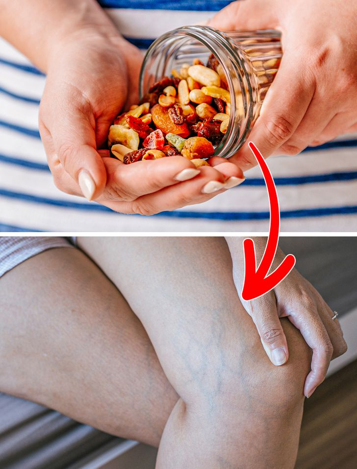 6 Daily Habits That May Damage Your Veins