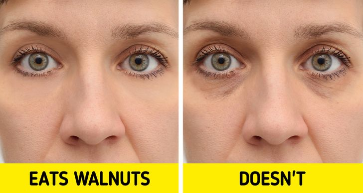 What Can Happen to Your Skin If You Eat Walnuts Every Day