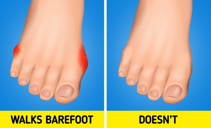 Why You Shouldn't Walk Around Barefoot, Even at Home